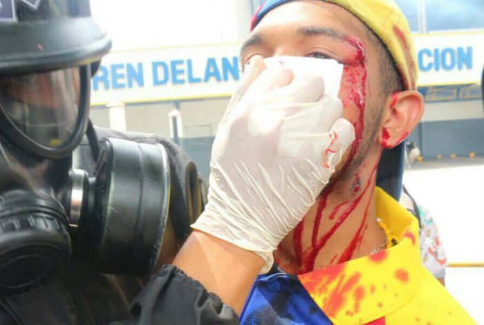 Violinista Wuilly Arteaga fue herido por efectivos de la GNB