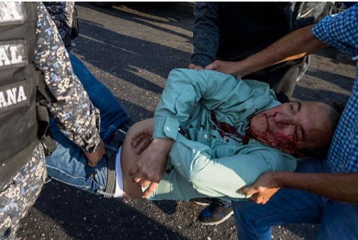 Rector Luis Emilio Rondón condenó actos violentos contra Henri Falcón en Catia